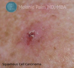 Squamous-Cell-Carcinoma, Art of Skin MD