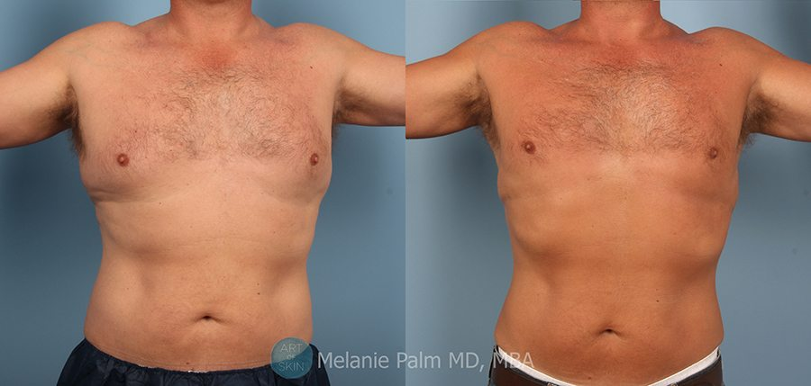 Body-Contouring-Chest-Lipo-San-Diego, Art of Skin MD