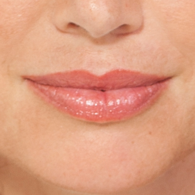 Lip Enhancement Before and After Photos -Dermatology San Diego