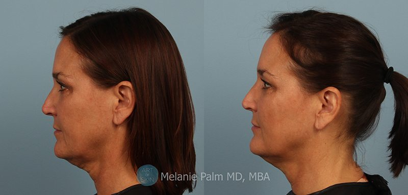 Silhouette Instalift Nonsurgical Facelift -Silhouette Lift