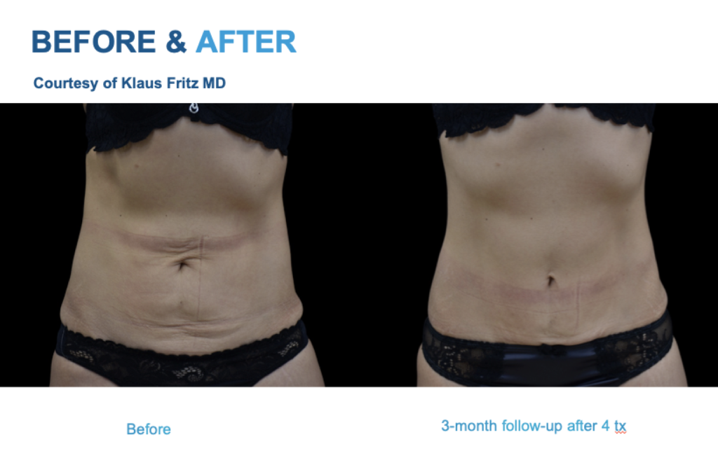 Emtone before and after abdomen. Emtone San Diego -Cellulite and Skin Tightening Treatment