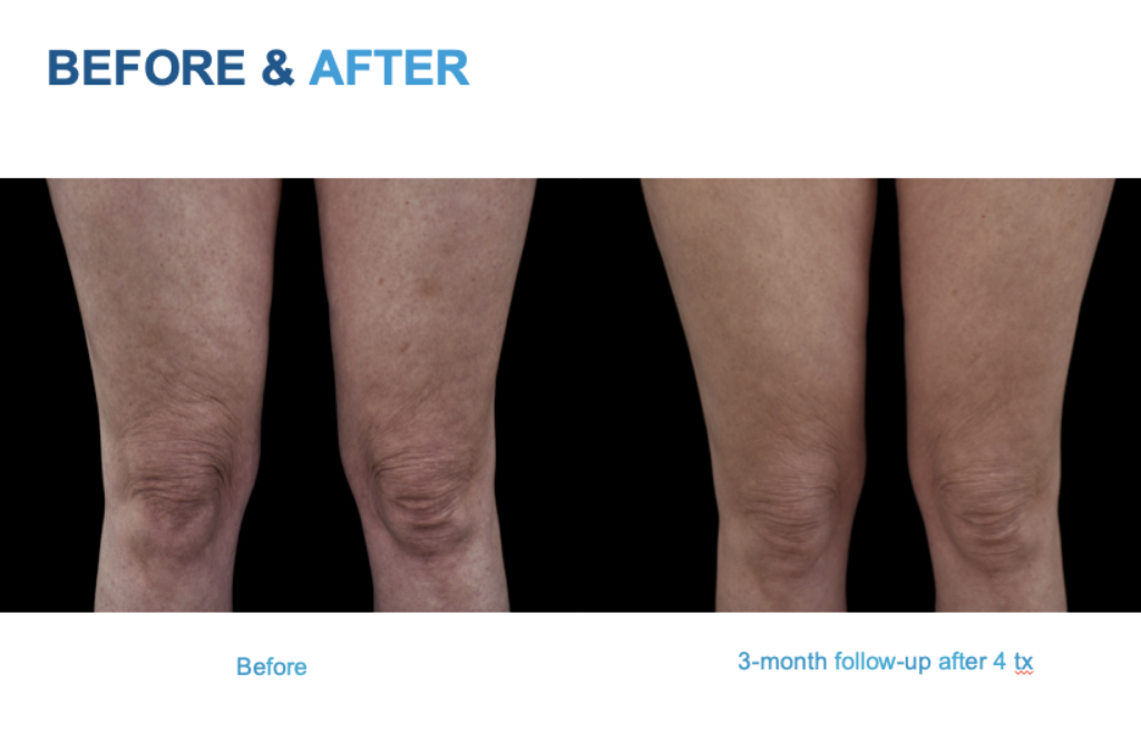 Emtone before and after legs. Emtone San Diego -Cellulite and Skin Tightening Treatment