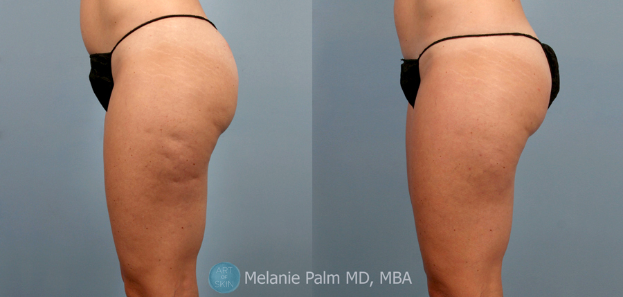 CELLFINA Treatment to dimples on thighs